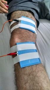 Fisioterapia Domiciliar em Salvador- Iontoforese