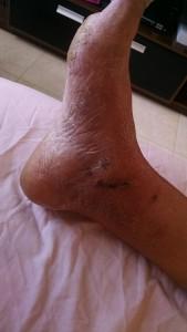 Fisioterapia Domiciliar em Salvador - Sequela de fratura