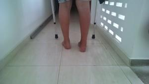 Fisioterapia Domiciliar em Salvador - Treino de marcha