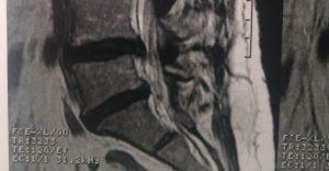 Fisioterapia Domiciliar em Salvador - Lesão em coluna lombar