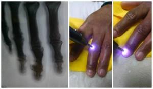 Fisioterapia Domiciliar em Salvador - Laserterapia lesão por arma de fogo