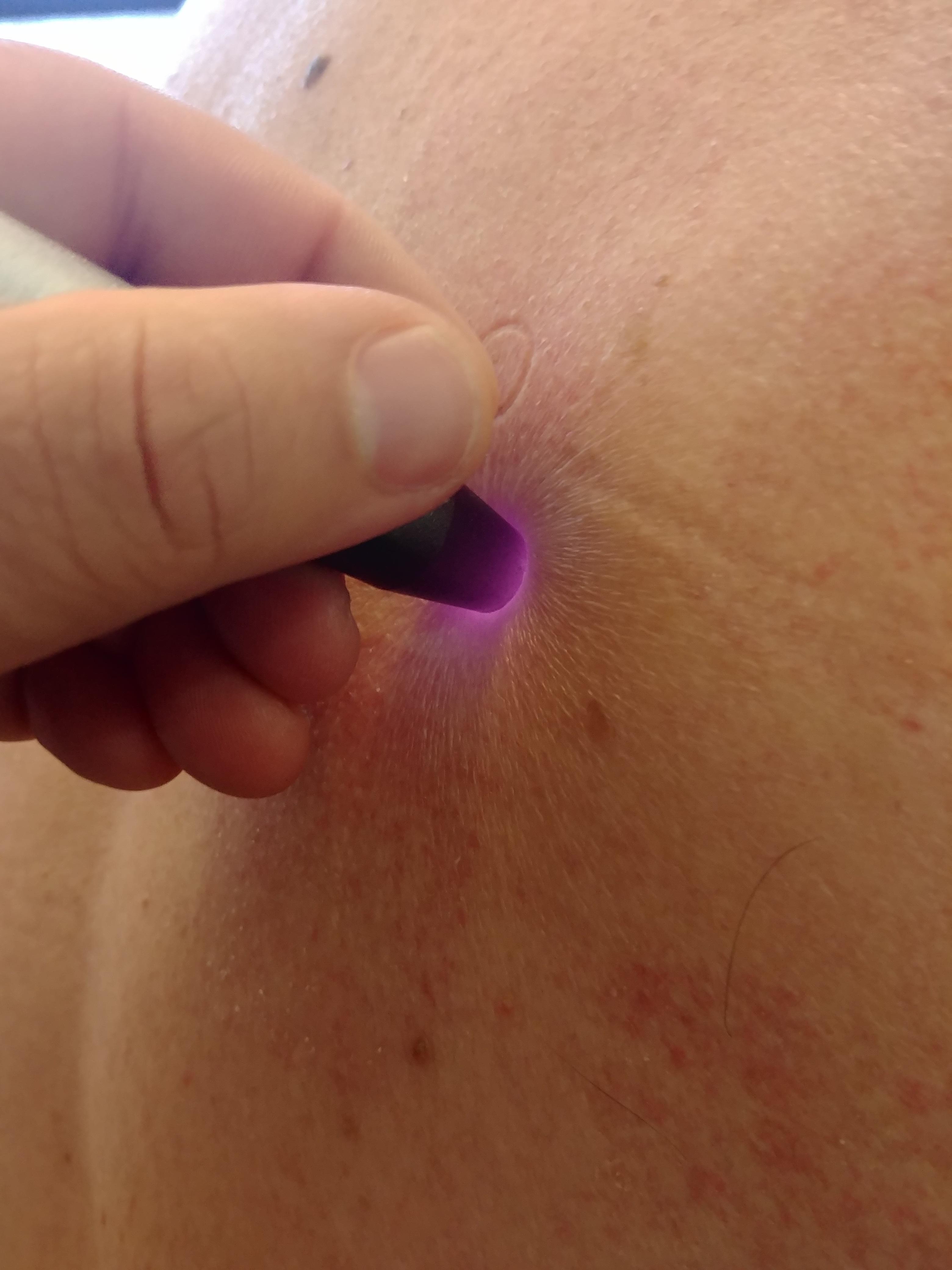 Fisioterapia Domiciliar - Laserterapia em Ombro