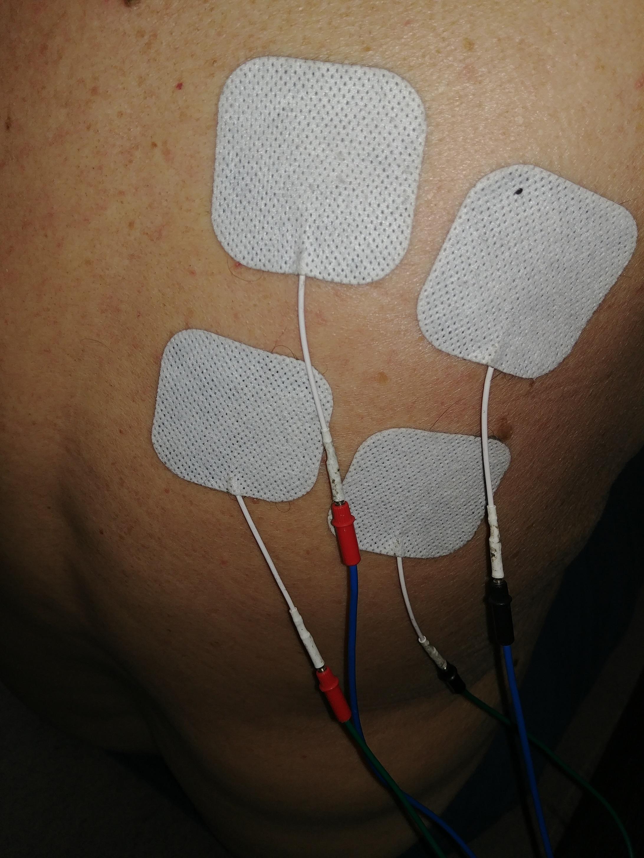Fisioterapia Domiciliar - Eletroanalgesia ombro congelado
