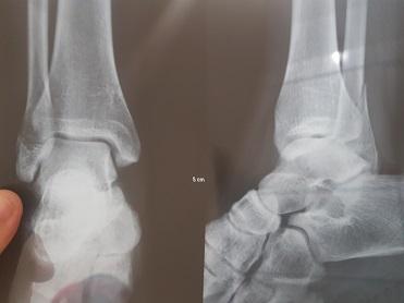Fisioterapia Domiciliar - Fratura tornozelo